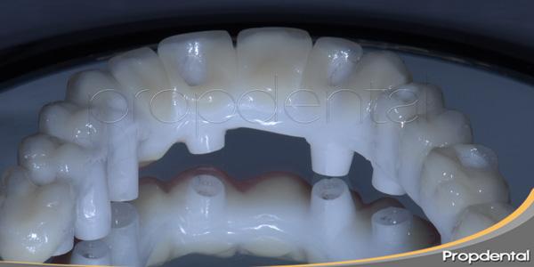 prótesis de circonio atornillada sobre implantes