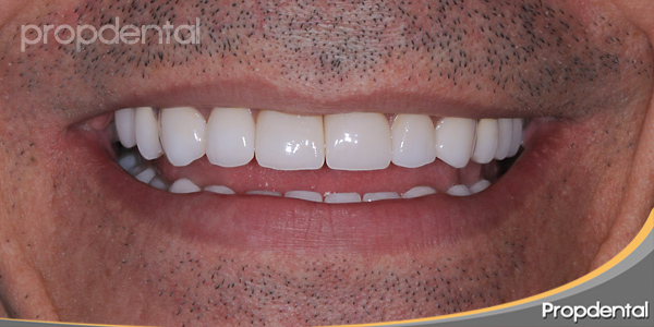 prótesis dentales propdental