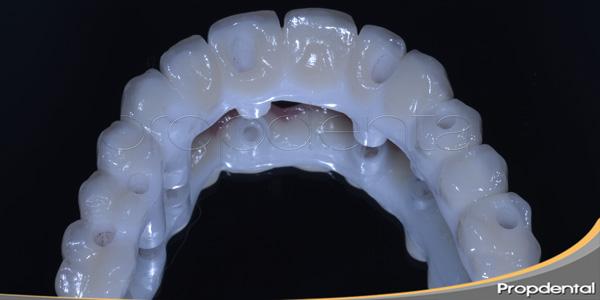 prótesis sobre implantes atornilladas