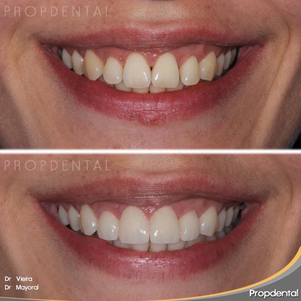 prueba de bizcocho prótesis dentales
