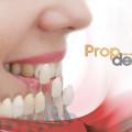 riesgos del blanqueamiento dental