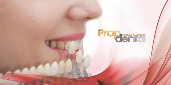 alimentos después del blanqueamiento dental