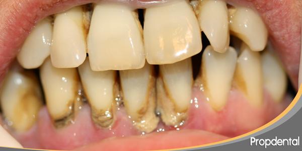 sarro dental y piorrea
