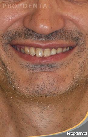 sonrisa antes del tratamiento de estética dental