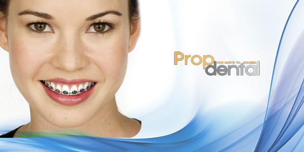 Transposición dentaria