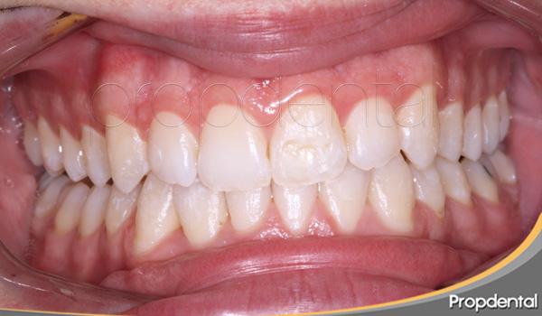 tratamiento con ortodoncista en clinicas propdental
