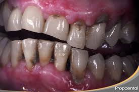 Periodontitis crónica del adulto