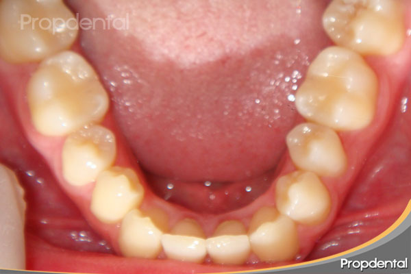 arcada inferior dientes alineados