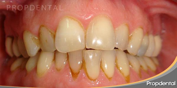 arcadas dentales estrechas