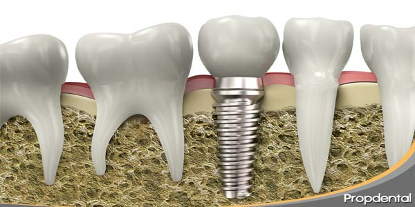 calidades implantes