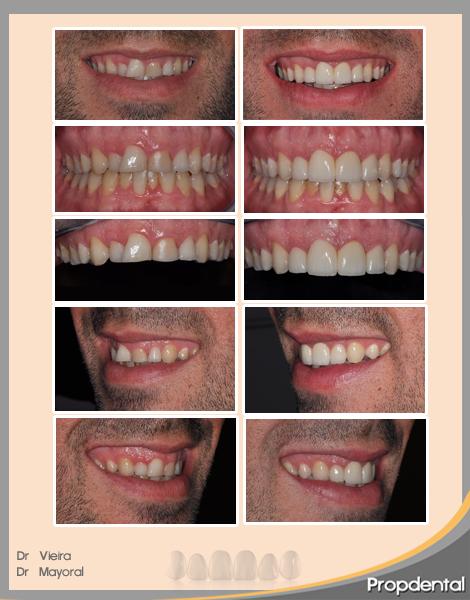 caso clinico antes y después
