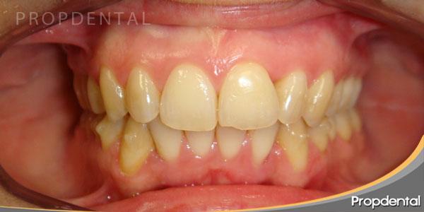 caso-clinico-de-ortodoncia-invisalign-barcelona