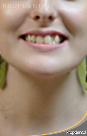 caso clínico ortodoncia antes