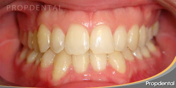 caso clinico ortodoncia invisalign