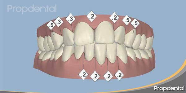 antes de iniciar el tratamiento de ortodoncia invisible, la visión en 3D de la boca del paciente de Propdental