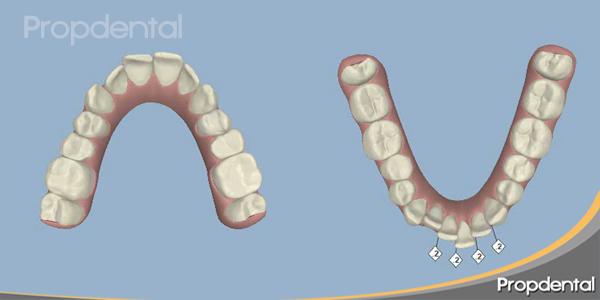 clinchek en donde empezamos la planificación de la resolución ortodoncica de la arcadas dentales estrechas
