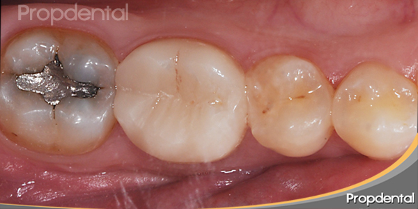 colocación incrustación dental