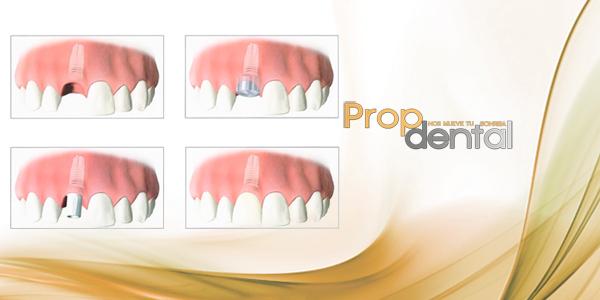 Criterio del éxito de los implantes dentales
