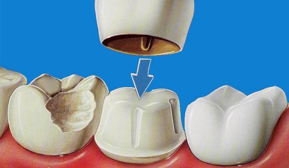 limar diente para funda dental