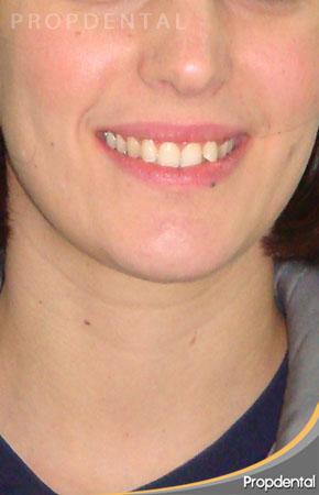 caso clínico de ortodoncia invisible