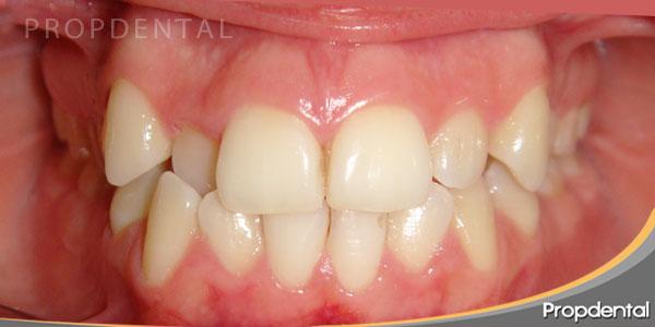 dientes apiñados tratados con ortodoncia invisalign