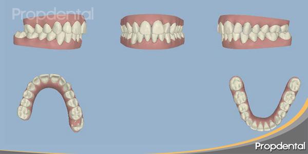 dientes en 3d posición inicial