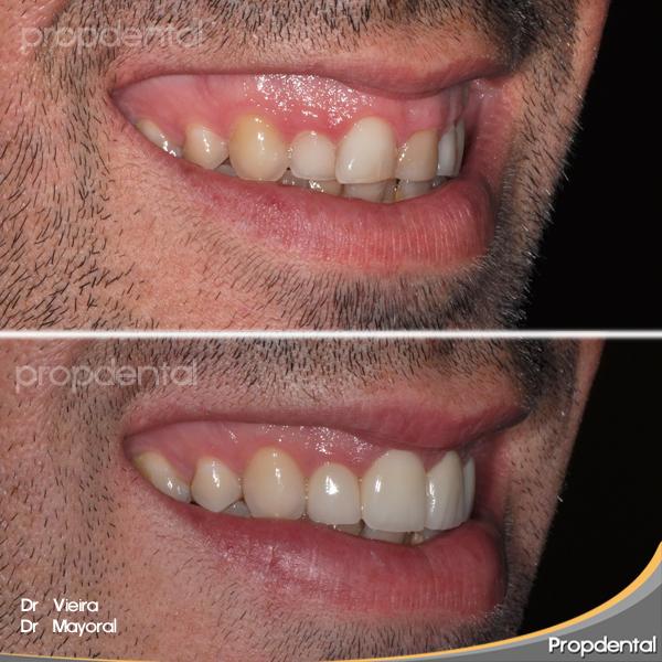 estética de los dientes anteriores
