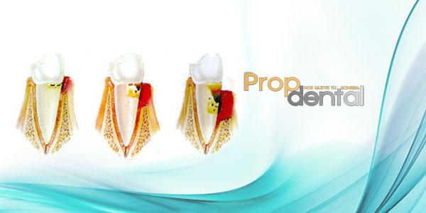 etapas enfermedad periodontal