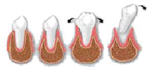 evolución de la enfermedad periodontal del adulto