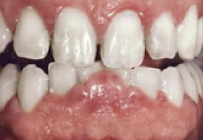 fármacos que provocan agrandamiento gingival