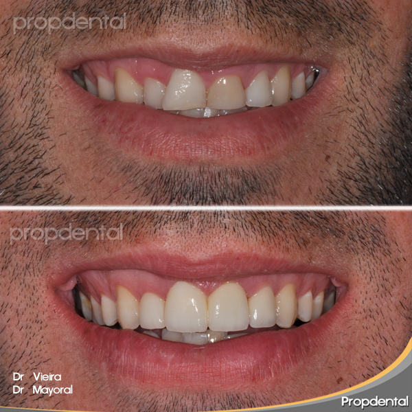 forma de los dientes incisivos