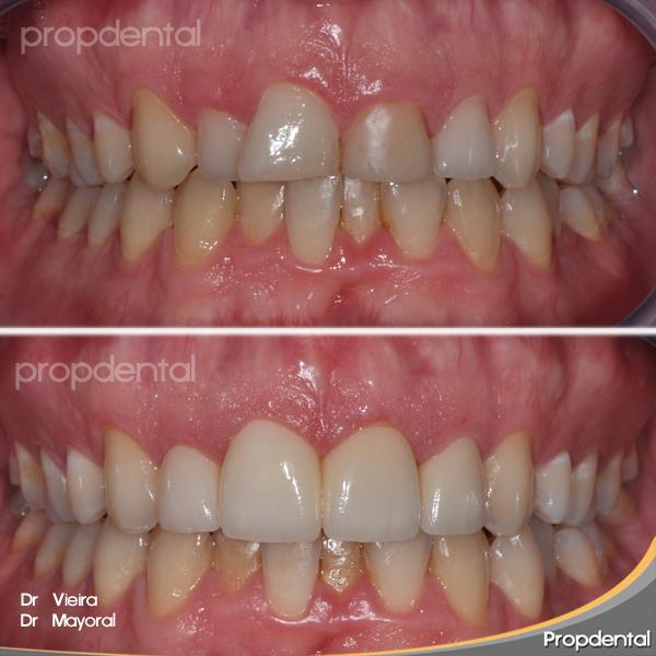 forma de los dientes de las prótesis dentales