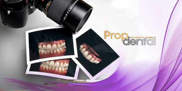 fotografia digital dental
