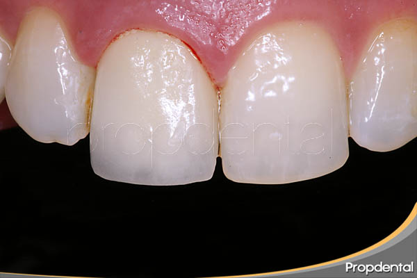 funda dental