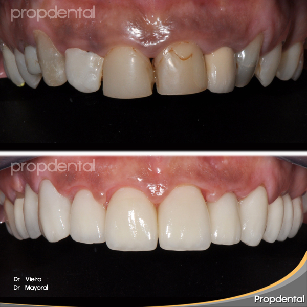 laminados cerámicos dentales