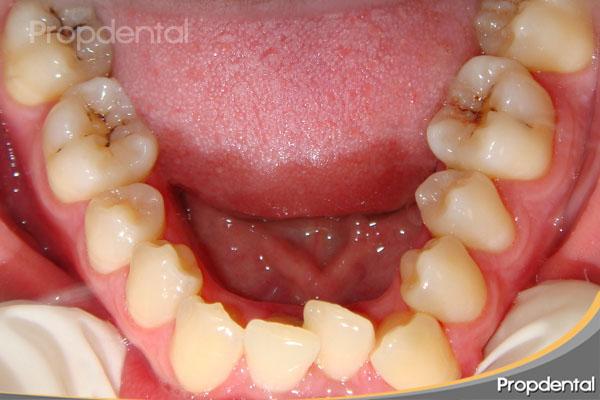 mal posición dental