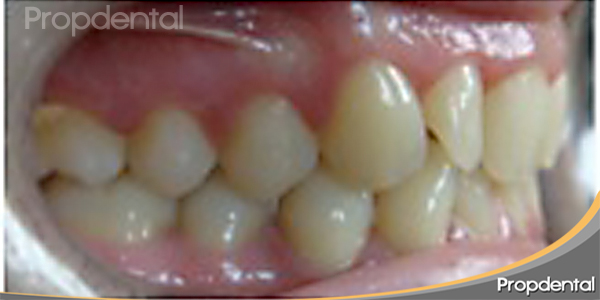 maloclusión ortodoncia