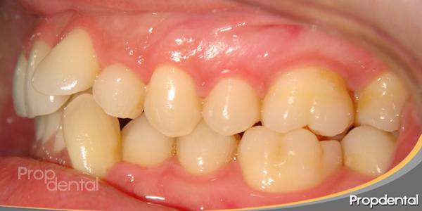 malposición dental