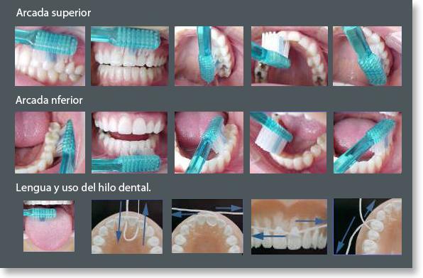 maneras de cepillar los dientes