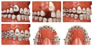 micro tornillos de ortodoncia