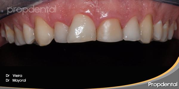 modificar la forma de los dientes