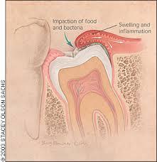 pericoronaritis muela del juicio
