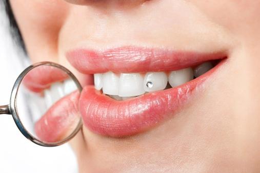 piercing en los-dientes