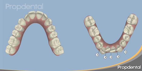 planificación tratamiento de ortodoncia por ordenador