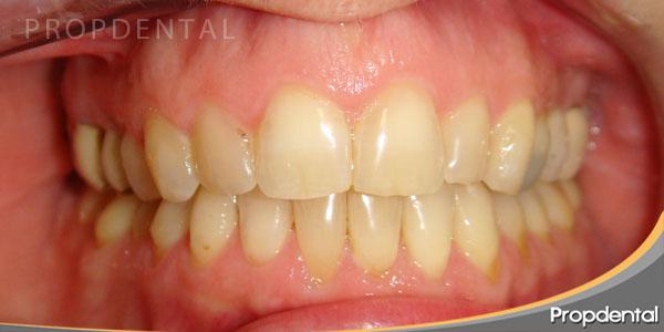 posición correcta de los dientes después del invisalign