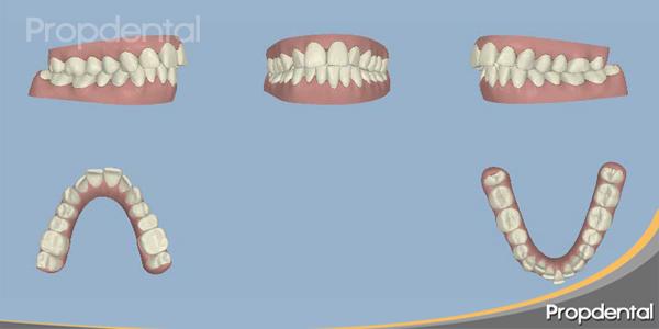 posición de los dientes en el clinchek inicial