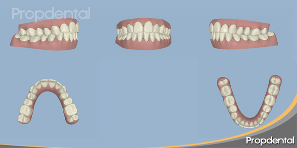 posición dientes corregida según planificación por ordenador
