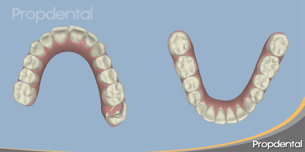 posición final de los dientes en 3d