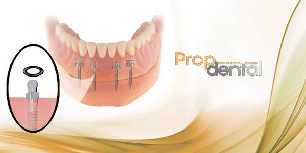 precio implantes dentales sant cugat