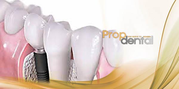 Preguntas sobre implantes dentales